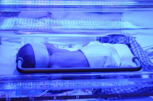Fototherapie | Neonatologie Bonn