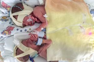 Neonatologie Bonn | FFTS | fetofetales Transfusionssyndrom